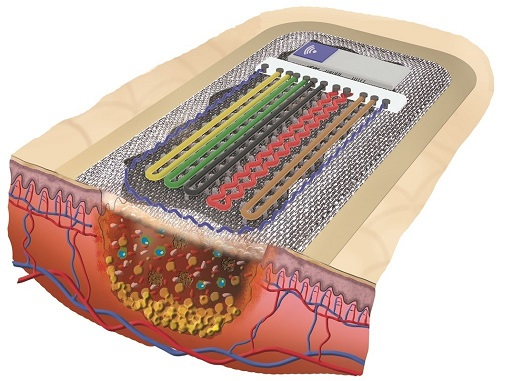 Smart wound monitoring: textile-based mini-sensors report back on the healing process / Source: ITM / Technical University of Dresden